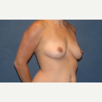 39 year old woman treated with Breast Implants before 3200952