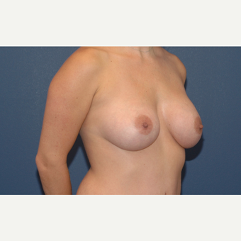 39 year old woman treated with Breast Implants after 3200952