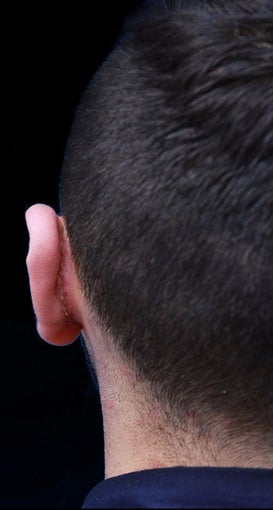 25-34 year old man treated with Ear Surgery after 3167717
