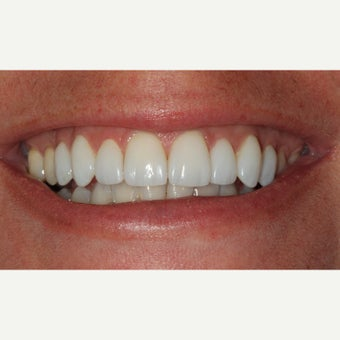 35-44 year old woman treated with Porcelain Veneers