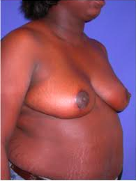 Breast Reduction 2498773