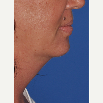 Kybella injection to reduce submental neck fat after 3375041
