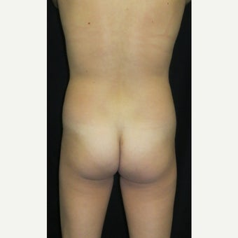 25-34 year old woman treated with Liposculpture and Fat Transfer before 1631890