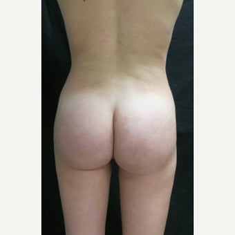 25-34 year old woman treated with Liposculpture and Fat Transfer after 1631890