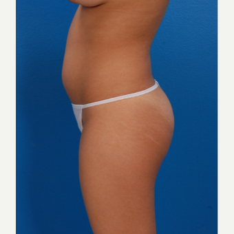 18 year old woman treated with liposuction to the circumferential trunk 1861595