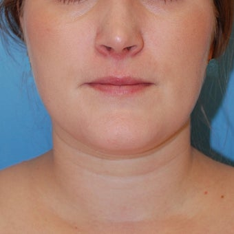 25-34 year old woman treated for Buccal Fat Removal before 1606120