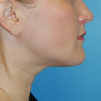 25-34 year old woman treated for Buccal Fat Removal 1606120