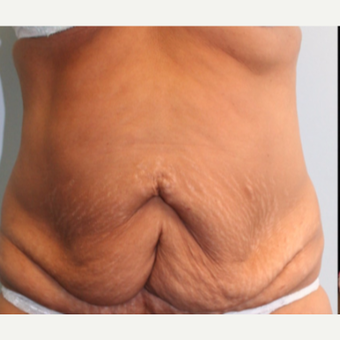 55-64 year old woman treated with Tummy Tuck before 3399492
