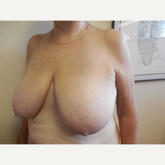 55-64 year old woman treated with Breast Reduction before 3412420