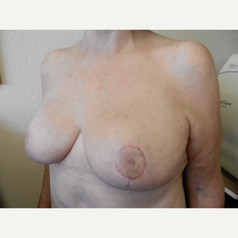 55-64 year old woman treated with Breast Reduction after 3412420