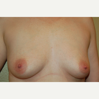 35-44 year old woman treated with Breast Implants before 3057152