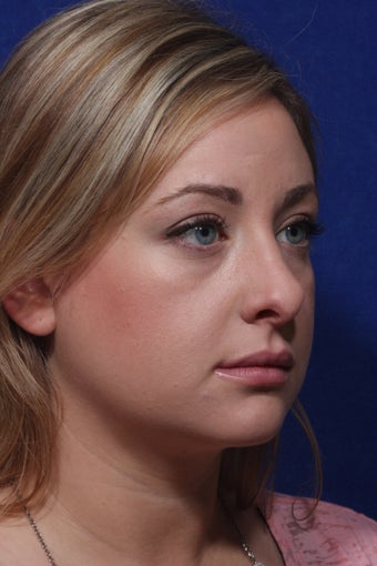 Revision Rhinoplasty before 1195005