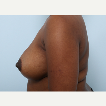 Breast Augmentation after 3460068
