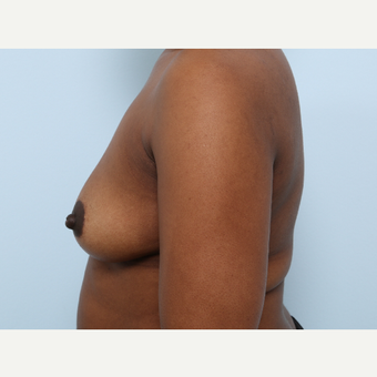 Breast Augmentation before 3460068