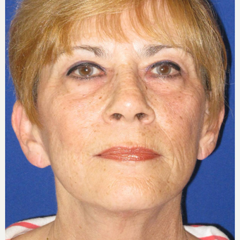65-74 year old woman treated with Facelift after 3084697