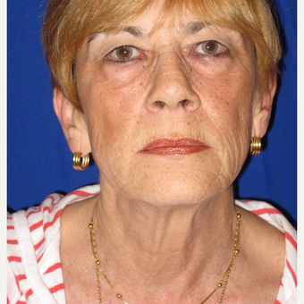 65-74 year old woman treated with Facelift before 3084697