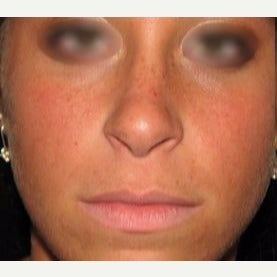 18-24 year old woman treated with Revision Rhinoplasty