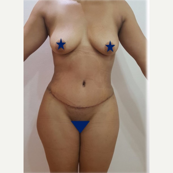 25-34 year old woman treated with Liposculpture after 3288162