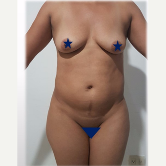 25-34 year old woman treated with Liposculpture before 3288162