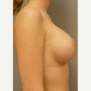25-34 year old woman treated with Breast Implants after 3108051