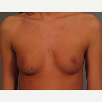 18-24 year old woman treated with Endo-Axillary Breast Augmentation before 3464980