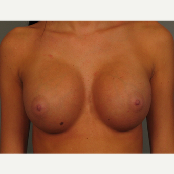 18-24 year old woman treated with Endo-Axillary Breast Augmentation after 3464980
