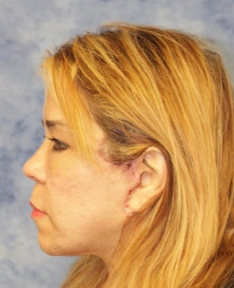 45-54 year old woman treated with Facelift after 3359474