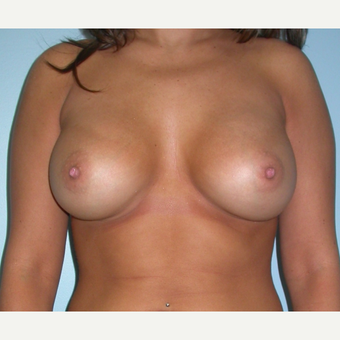 25 year old woman treated with Breast Augmentation and increasing form B to D cup size after 3212861