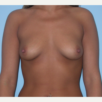 25 year old woman treated with Breast Augmentation and increasing form B to D cup size before 3212861