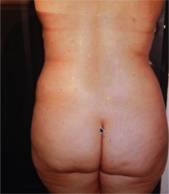 Liposuction + BBL before 1210576