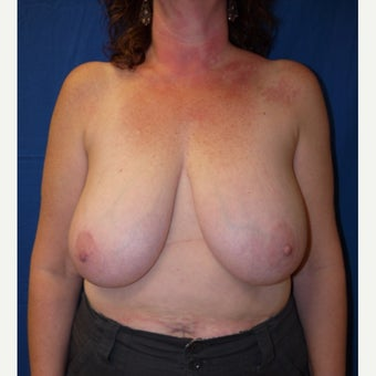 45-54 year old woman treated with Breast Reduction before 2611830