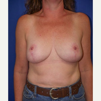 45-54 year old woman treated with Breast Reduction after 2611830