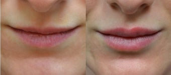 Restylane Filler in Lips before 1306460