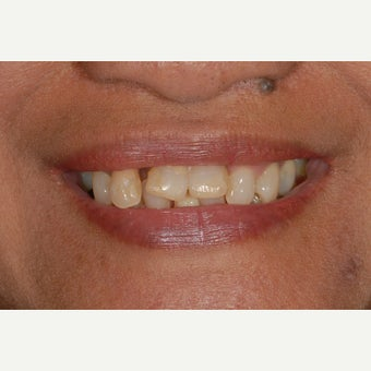 45-54 year old woman treated with All-on-4 Dental Implants before 2257109