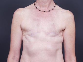 51 Year Old Feamale for Breast Reconstruction before 643230
