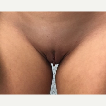 25-34 year old woman treated with Labiaplasty before 3289375
