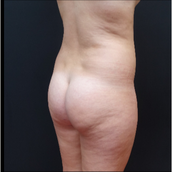 18-24 year old woman treated with Butt Augmentation before 3315493