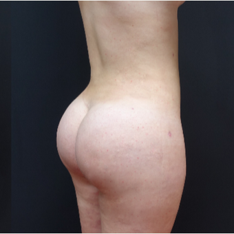 18-24 year old woman treated with Butt Augmentation after 3315493