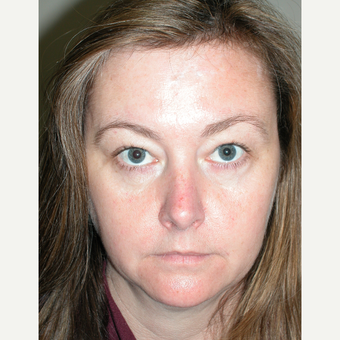 45-54 year old woman treated with Facelift before 3154185
