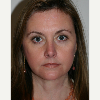 45-54 year old woman treated with Facelift after 3154185