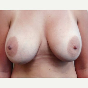 25-34 year old woman treated with Breast Augmentation after 3134739