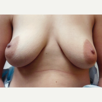 25-34 year old woman treated with Breast Augmentation before 3134739