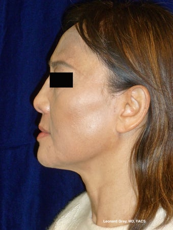 ThermiTight Brow, Lower Face, and Neck after 1450554