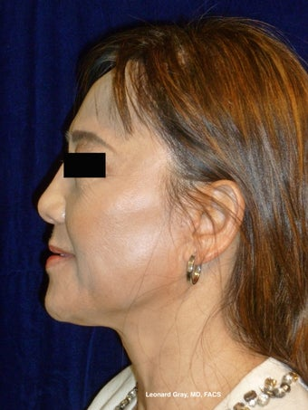 ThermiTight Brow, Lower Face, and Neck before 1450554