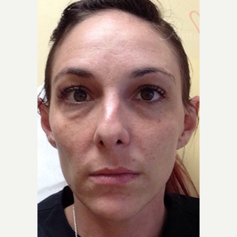 25-34 year old woman treated with Restylane before 3504941