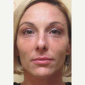 25-34 year old woman treated with Restylane after 3504941