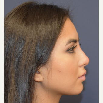 18-24 year old woman treated with Rhinoplasty after 3854711