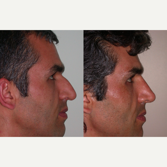 25-34 year old man treated with Rhinoplasty before 3521774