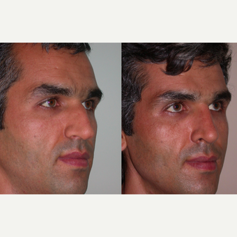 25-34 year old man treated with Rhinoplasty after 3521774
