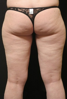 35-44 year old woman treated with CoolSculpting after 1870900